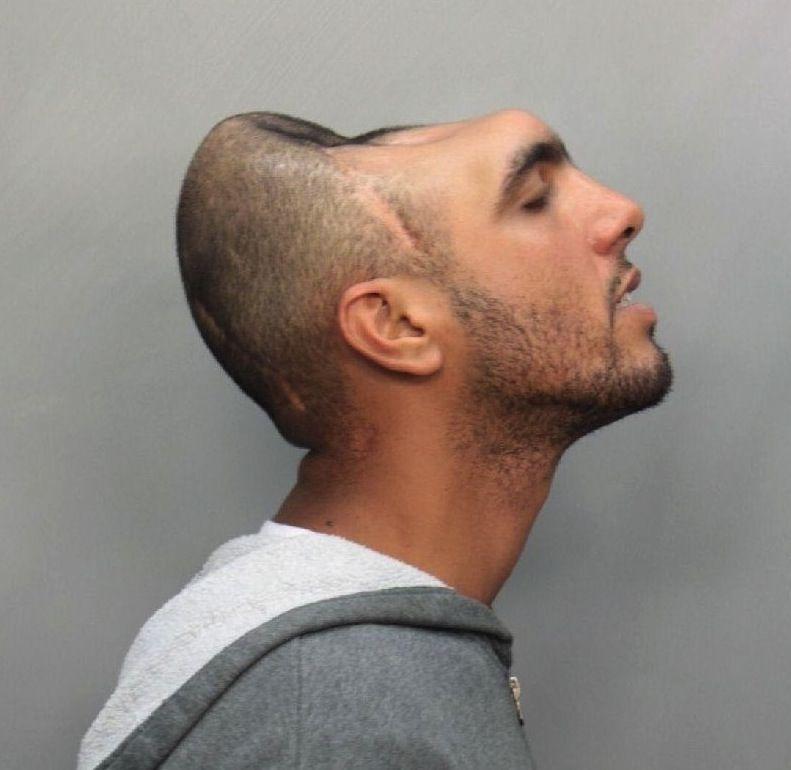 Half-Head-Man